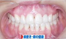 にほんブログ村 健康ブログ 歯磨き・歯の健康へ