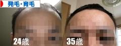 にほんブログ村 健康ブログ 発毛・育毛へ